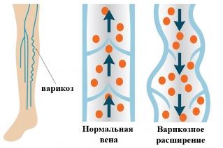 sol-iletsk și varicoză